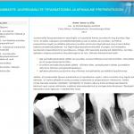 Õpiobjekt Hammaste juurekanalite tipuanatoomia ja apikaalne preparatsioon